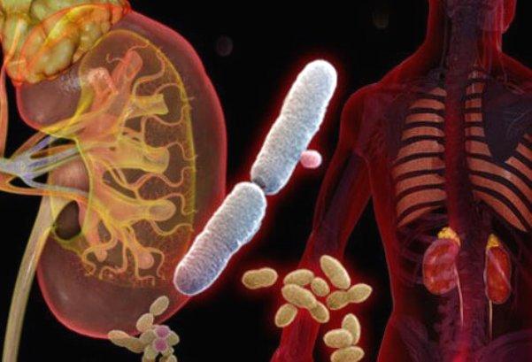 Что такое инфекции почек?