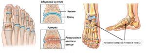 artrit-golenostopnogo-sustava-2