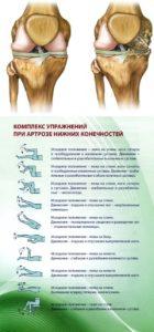 artrit-golenostopnogo-sustava-1