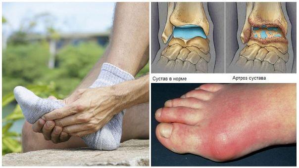 Остеоартрит стопы и голеностопного сустава