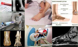 diagnosticheskie-metody-artrita-golenostopa