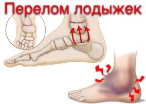 diagnostika-i-lechenie-pereloma-lodyzhki-reabilitaciya-posle-poluchennoy-travmy-2
