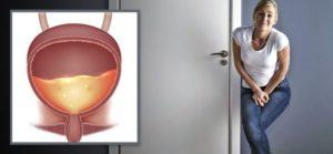 Мочевой пузырь симптомы и лечение