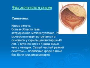 rak-mochevogo-puzirya3