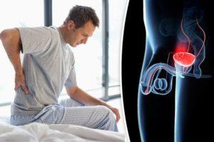Рак мочевого пузыря. Симптомы, признаки, диагностика и лечение