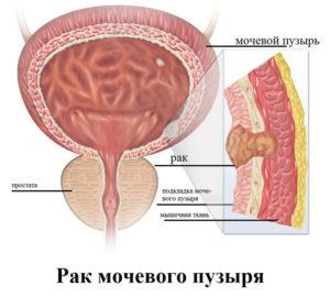 rak-mochevogo-puzirya2