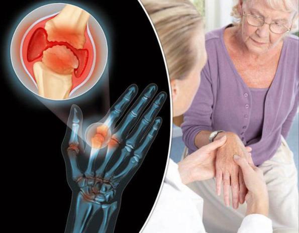 Ревматоидный артрит. Как предотвратить повреждение суставов?