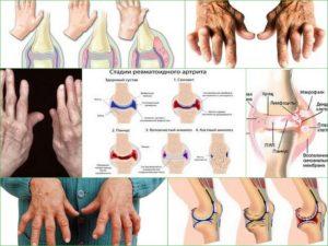 revmatoidnyj-artrit-vneshnij-vid