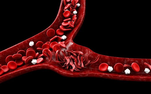 Серповидноклеточная анемия— заболевание крови