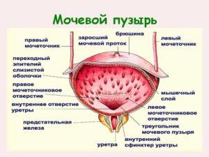 simptomy-mochevoj-puzyr-lechenie