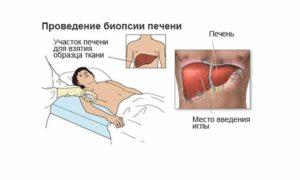 biopsiya-pecheni