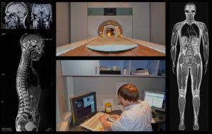 magnitno-rezonansnaya-tomografiya2
