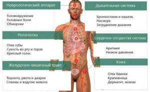 Признаки-аллергии