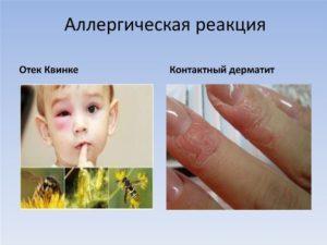 Аллергическая реакция. Что вы знаете об этом?