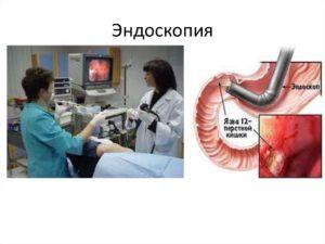 endoskopicheskoje-obsledovanije-zheludka