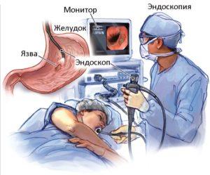 endoskopiya-chto-vy-znaete-ob-etom