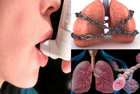 Лекарства от астмы. Какие препараты вы знаете?