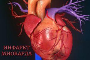 Сердечный приступ или инфаркт миокарда