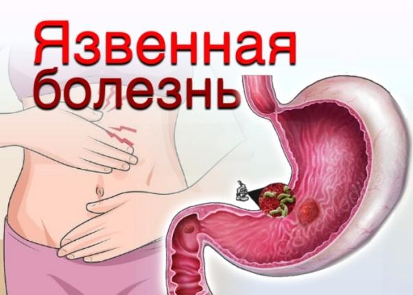 Язвенная болезнь. Причины, диагностика и лечение
