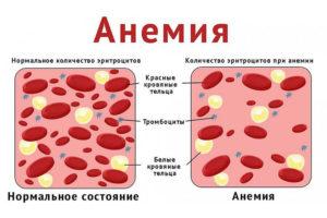 anemiya1