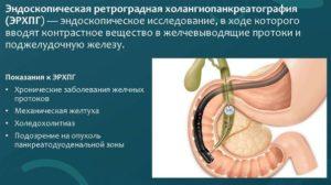 ЭРПХГ: эндоскопическая ретроградная холангиопанкреатография