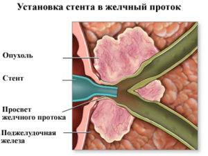 erpxg-endoskopicheskaya-retrogradnaya-xolangiopankreatografiya