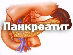 Панкреатит. Описание, симптомы, диагностика, лечение