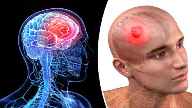 Травмы головы. Как обезопасить себя?