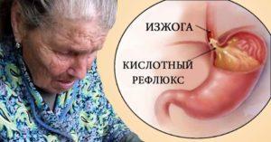 Кислотный рефлюкс или ГЭРБ : диагностика и лечение