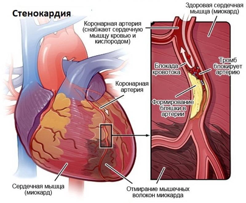 Стенокардия. Ишемическая боль в груди
