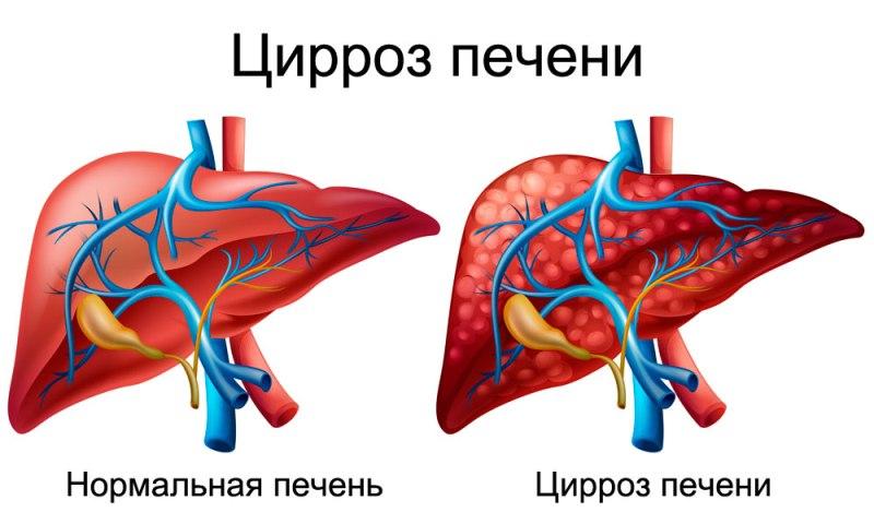Цирроз печени: симптомы, лечение, диагностика