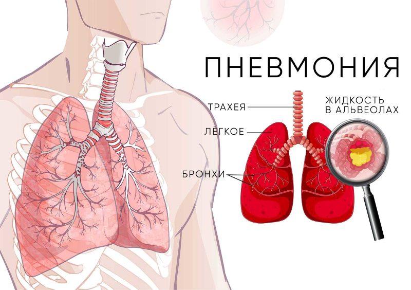 Пневмония. Симптомы, причины, диагностика и лечение
