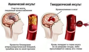 Инсульт