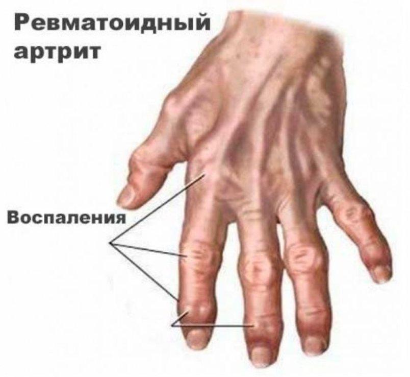 Ревматоидный артрит. Причины и факторы риска