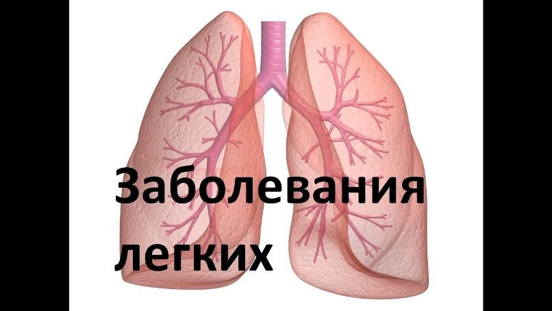 Заболевания легких : симптомы и признаки болезней
