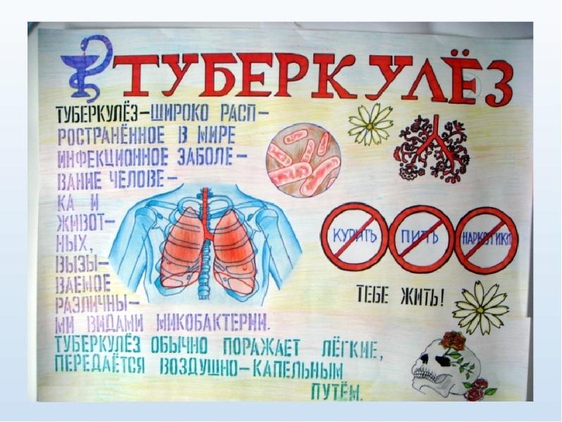 Туберкулез: причины, симптомы, лечение и последствия